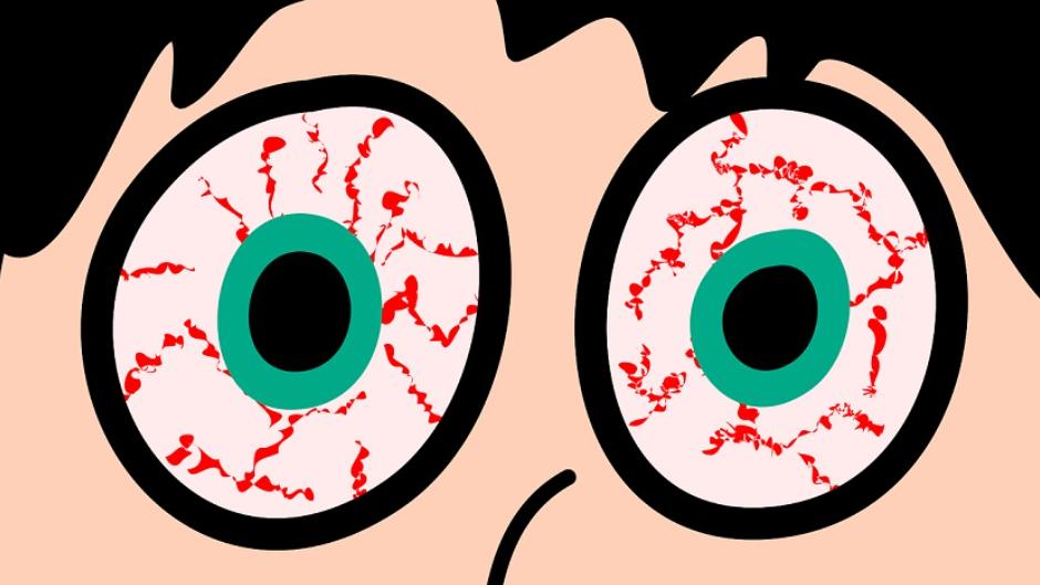 角膜炎怎么治療