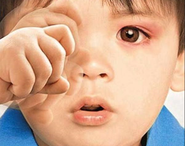 眼睛紅是怎么回事