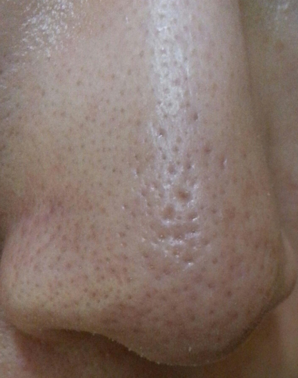 鼻子黑毛跟黑头的区别