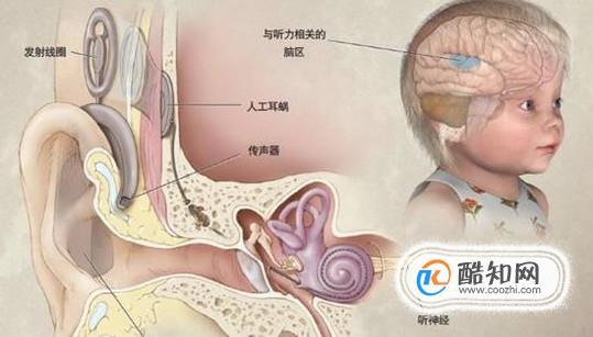 助听器和人工耳蜗的区别