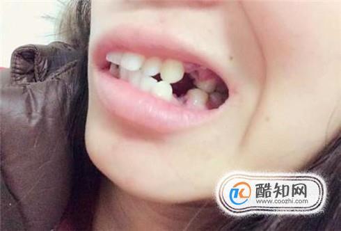 牙齦爛了怎么辦