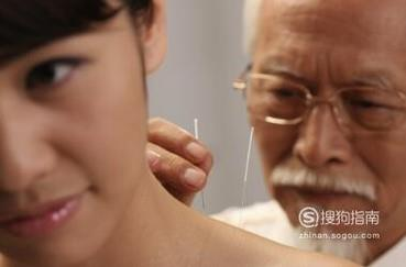 针灸需要注意什么