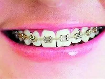 戴牙套需要注意些什么,相貌真的会有改变吗?
