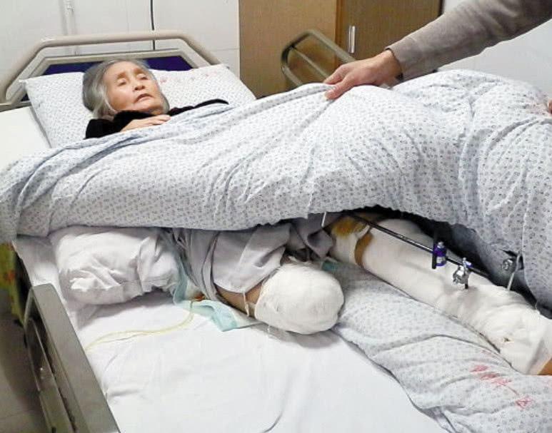 截肢后的肢体去哪里了,把断肢还给患者还是留在医院?