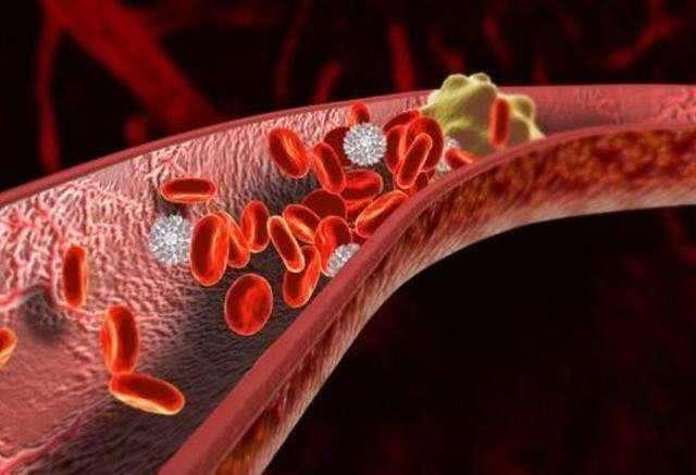 身体有血栓是什么症状,预防血栓吃什么食物好