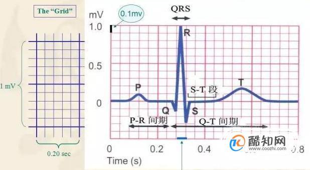 教你如何看懂心电图