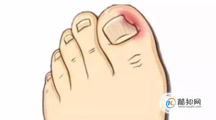 脚指甲往肉里长怎么办